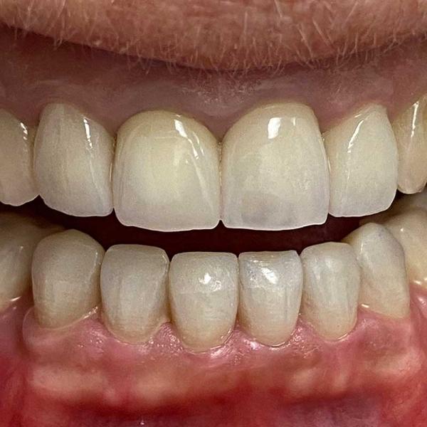 dental crowns - after