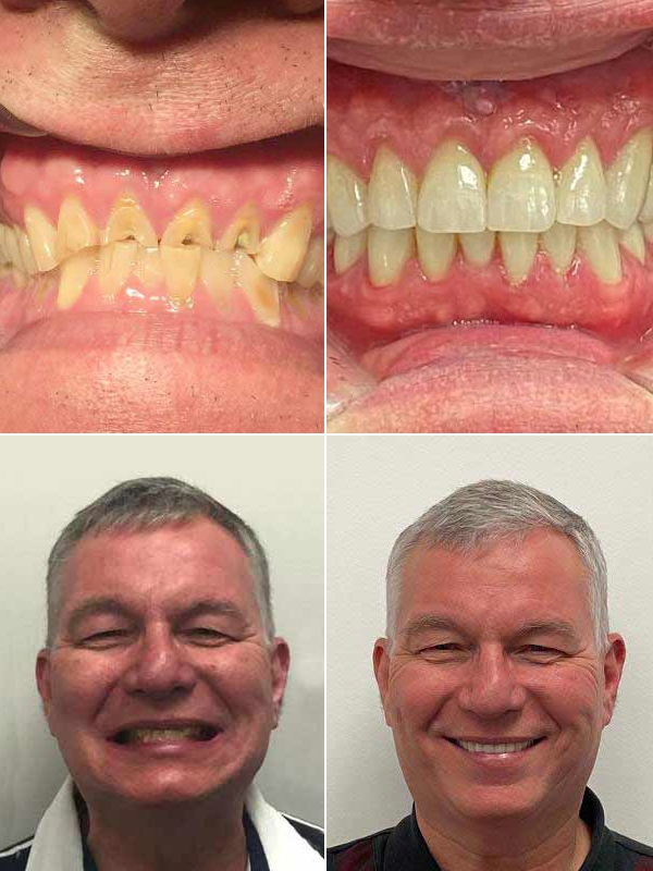crowns and bridges before & after