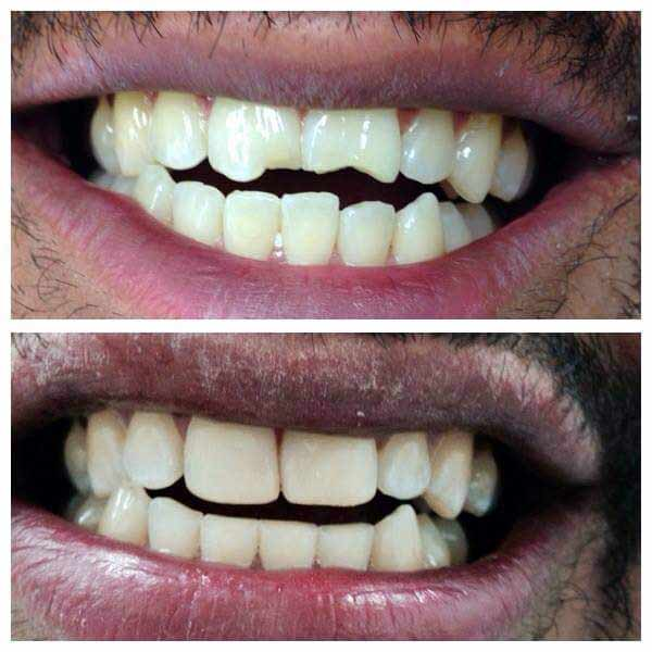 cosmetic dentistry - before and after teeth restoration
