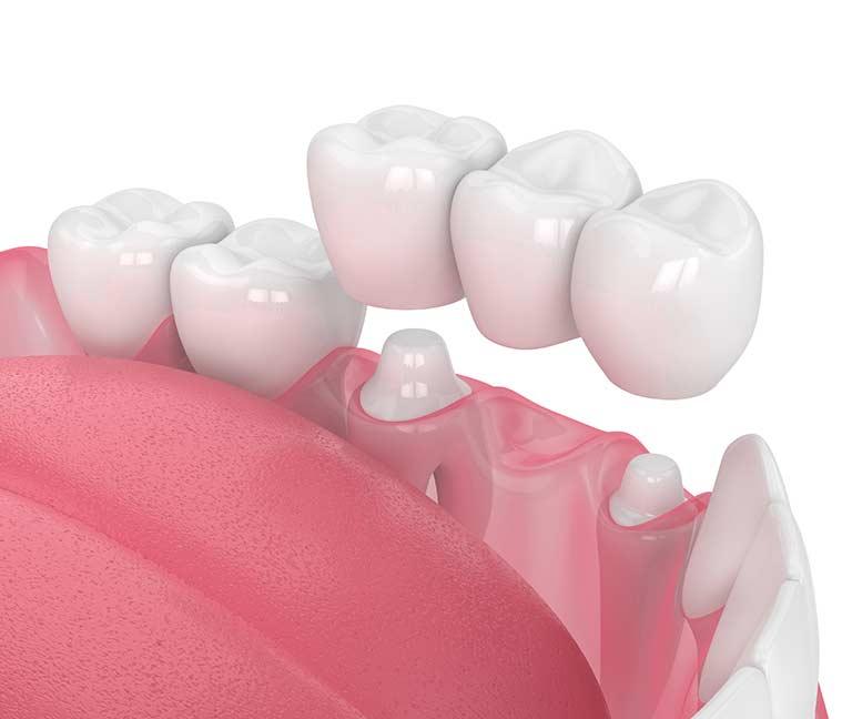 dental crowns and bridge